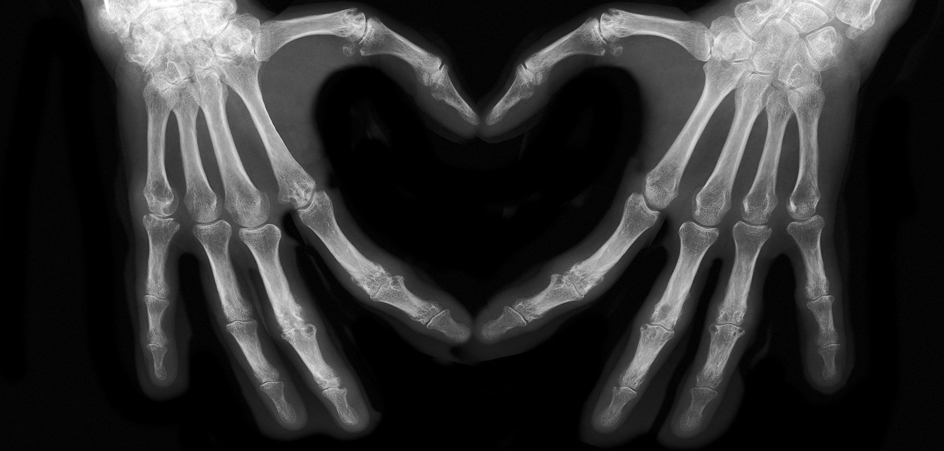 hands on an x-ray